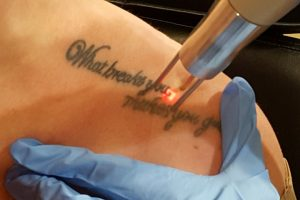 laser tattoo removal services